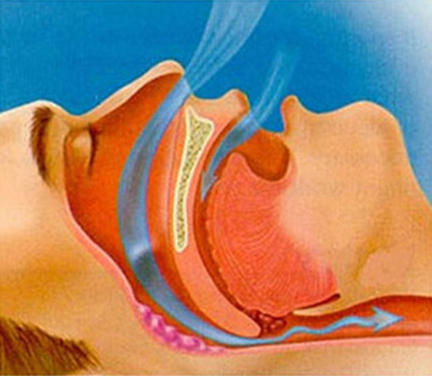 Obstructive Sleep Apnea Treatment