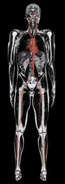 Whole Body MRI Scan